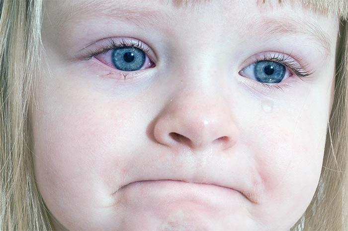 Как лечить коньюктивит у ребенка в 3 месяца
