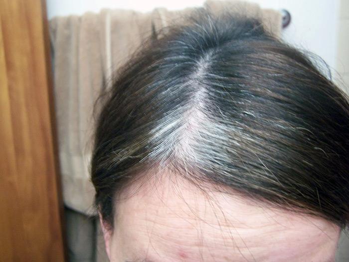 Седой волос