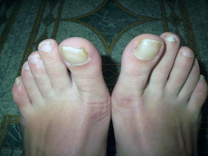 Лечение толстых ногтей на ногах. Что делать если ноготь на ноге пожелтел и стал толще и как от этого избавиться