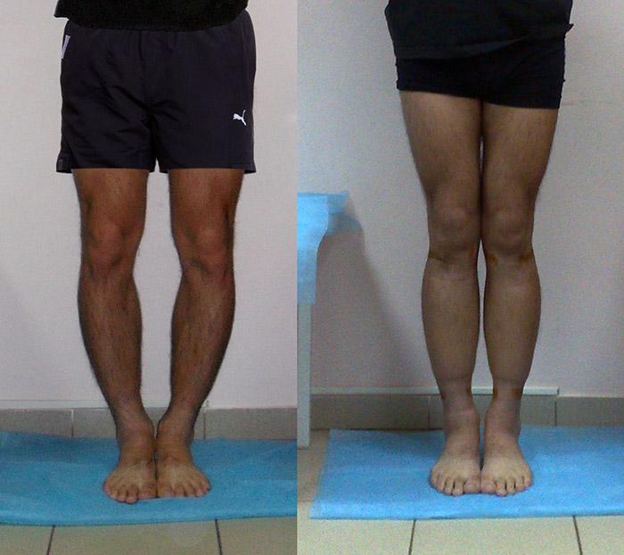 Кривые ноги и сексуальность