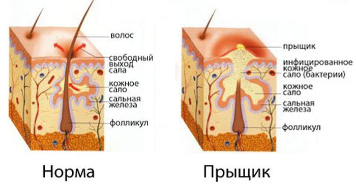 Внутренний прыщ на подбородке лечение