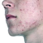 Демодекоз на лице — симптомы и лечение