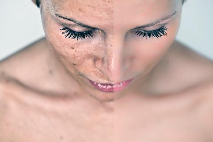 новые КБК как бороться с пигментацией на лице первую очередь