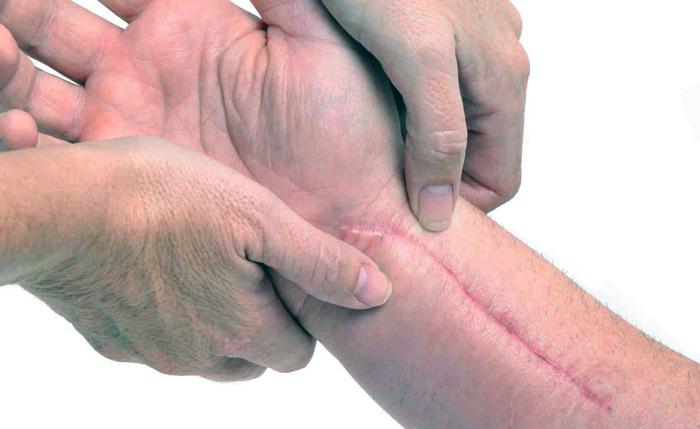 на руке шрам