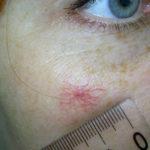 Откуда берутся капилляры на лице?