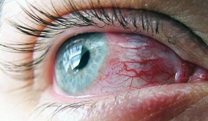 капилляры на глазу