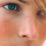 Гиперемия кожи лица — что это такое?