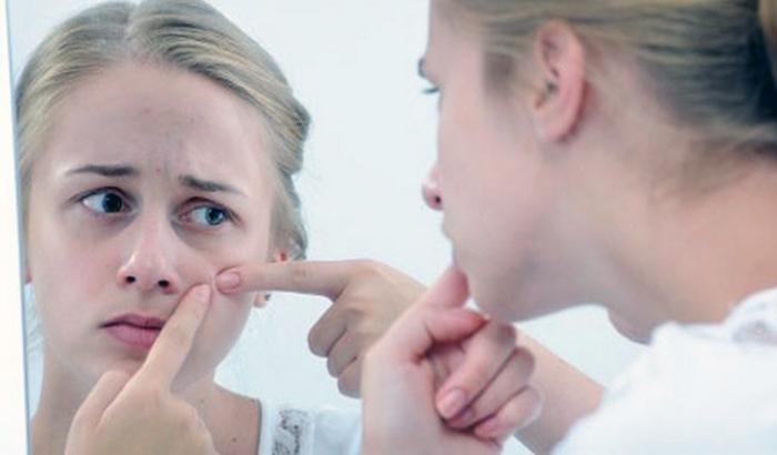 лечение от мелких прыщиков на лице